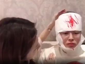Chàng trai chui vào hộp quà tạo bất ngờ cho bạn gái và cái kết vào viện khâu 20 mũi