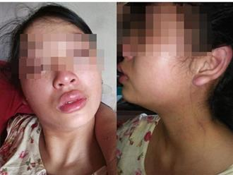 Vợ 16 tuổi lên mạng tố chồng đánh đập, siết cổ, đuổi ra khỏi nhà khi mới sinh con được 1 tháng
