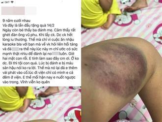 Cằn nhằn chuyện ăn nhậu, vợ bị chồng đánh nhập viện đúng dịp Lễ tình nhân
