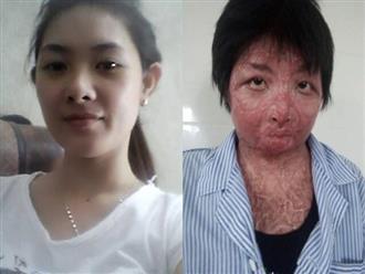 Sau 2 năm bị chồng tẩm xăng thiêu sống, mẹ trẻ Yên Bái đếm ngược từng ngày để được gặp con