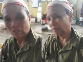 Nghi án con dâu đánh mẹ chồng ở Nghệ An thâm tím mặt mày: Hàng xóm bức xúc