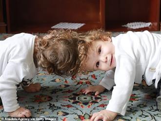 Cuộc chiến giành sự sống của cặp song sinh dính đầu cực hiếm: Gần 2 tuổi vẫn không thấy mặt nhau, trải qua 3 cuộc đại phẫu thuật mới có thể tách rời