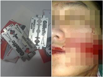 Thấy chồng chở gái đi trong đêm, vợ dùng dao lam rạch mặt và ngực 'tình địch'