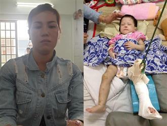 Bị cha mẹ bỏ rơi, bé gái 2 tuổi tiếp tục bị 'mẹ nuôi' đánh gãy chân, thương tật 60% chỉ vì biếng ăn, hay khóc