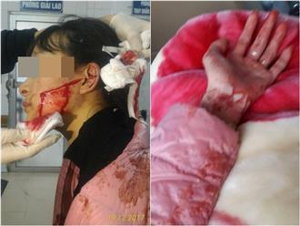 Thanh Hóa: Mâu thuẫn buôn bán, nữ sinh lớp 11 bị rạch mặt dã man