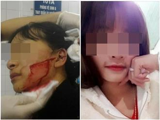 Anh trai nữ sinh lớp 11 bị rạch mặt dã man: 'Người đâm em gái tôi không đền bù và tỏ thái độ thách thức'