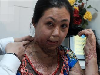 Vừa chia tay chồng, người phụ nữ bị kẻ lạ tạt axit, đau đớn khi con trai 8 tuổi sợ hãi, không nhận ra mẹ