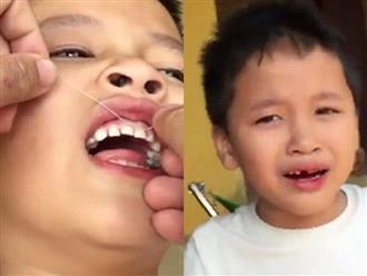 Bố dùng xe máy nhổ răng cho con trai khiến dân mạng ''cười chảy nước mắt''