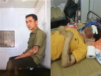 Bắt giữ 2 nghi phạm tạt axit nữ phụ bếpmù mắtở Hòa Bình
