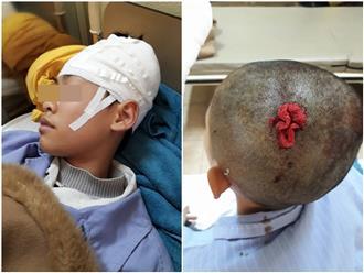 Quảng Ninh: Thầy giáo thể dục bị tố đánh học sinh tụ máu não, phải nhập viện phẫu thuật