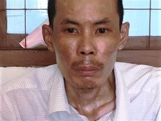Phú Yên: Không nấu cơm, vợ bị chồng tưới xăng thiêu sống