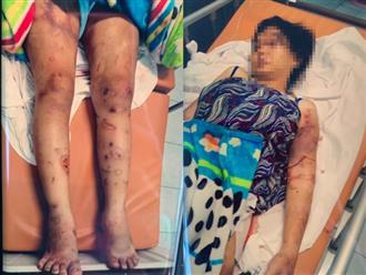 """Màn tra tấn như thời Trung cổ vụ cô gái mang thai 6 tháng bị """"bắt cóc"""", đánh đập khiến thai nhi tử vong ở Sài Gòn"""