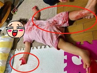 Mẹ khóc lóc thảm thiết khi thấy con nằm bất động trong tình trạng đáng sợ, biết sự thật thì vừa tức vừa buồn cười