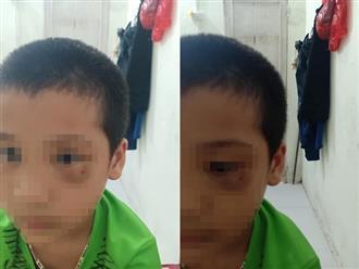 Vụ phụ huynh tát trẻ mẫu giáo: Người mẹ chính thức xin lỗi, công khai luôn ảnh đôi mắt bầm tím của con mình