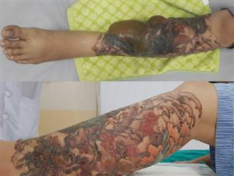 Xăm đầy cẳng chân rồi xóa bằng laser, một phụ nữ bỏng nặng
