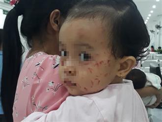 Xôn xao thông tin bé gái bị chấn thương đầu, mặt đầy vết cào xước sau khi đi nhà trẻ