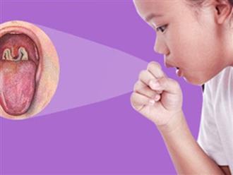 2 bé ở Đắk Nông mắc bệnh bạch hầu: Những điều cần biết về bệnh nhiễm trùng dễ dàng qua đường hô hấp này để phòng bệnh tốt nhất