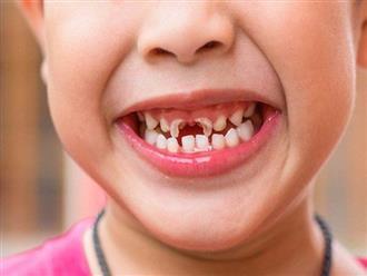 5 quan niệm sai lầm của cha mẹ trong chăm sóc răng sữa của trẻ khiến con bị HÔ, viêm tủy cả đời