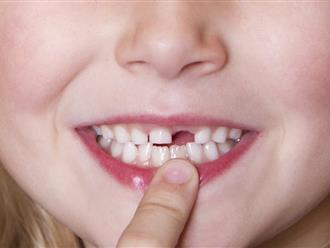 Bài thuốc chữa viêm lợi, miệng hôi ở trẻ răng sữa