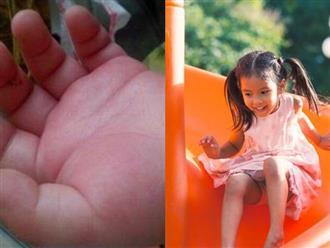 Bàn tay bé 5 tháng tuổi sưng phồng như bánh bao, bố ân hận khi bác sĩ tiết lộ kết quả chụp X-quang