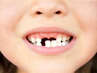 Bé 3 tuổi bị viêm cơ tim chỉ vì... một chiếc răng sâu