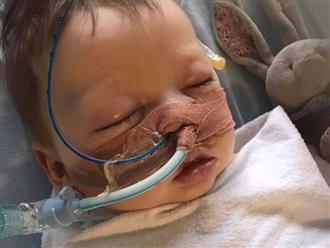 Bé 5 tháng tuổi nguy kịch vì viêm tiểu phế quản