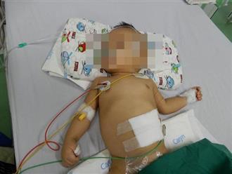 Bé trai sinh ra được hơn 4kg, bỗng nhiên bỏ ăn và gầy như bộ xương bởi chính căn bệnh hay gặp này ở trẻ