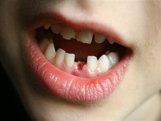 Cảnh báo sau vụ: Cậu bé 4 tuổi mất đi toàn bộ 18 chiếc răng vì thói quen lặp đi lặp lại của bố mẹ
