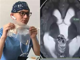 Cậu bé 5 tuổi bị đau đầu, nôn mửa, đi khám bác sĩ phát hiện có tới 9 chiếc răng trong não