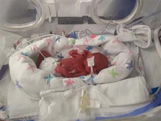 Chào đời chưa được nửa kg, có 1% cơ hội sống, cặp sinh non ấy giờ ra sao?