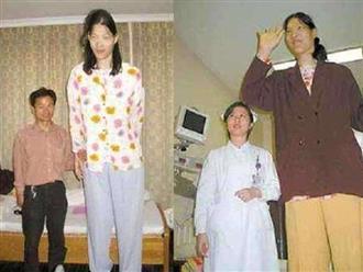 Cô bé 1 tuổi ăn 2kg gạo mỗi bữa và bi kịch đau lòng khi trưởng thành chẳng ai ngờ