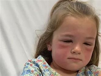 Con gái bị sưng vù mặt, dị ứng nặng vì chơi với 1 thứ mà nhiều trẻ rất thích