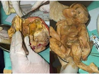 Đau bụng âm ỉ mãi không khỏi, người phụ nữ đi khám và ngạc nhiên tột độ khi biết trong bụng là thai nhi đã chết 15 năm