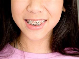 Đây là những điều cha mẹ rất nên cân nhắc trước khi quyết định cho con đi niềng răng