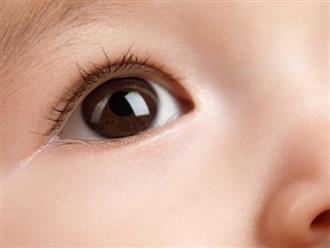 Em bé 42 ngày tuổi được người nhà đưa đi khám, bác sĩ liền phát hiện ra căn bệnh tử thần trong mắt bé và phải vội vàng họp khẩn cấp