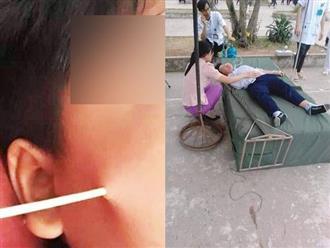 Học sinh bị que đâm thủng mặt ở trường: Cha mẹ đừng chỉ lo sợ suông, hãy can thiệp ngay các vấn đề sau