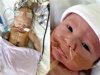 Mới sinh con được 40 phút, bà mẹ chết lặng nghe bác sĩ nói chuẩn bị tinh thần vì con rất yếu