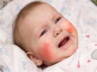 Những bệnh trẻ em thường gặp vào mùa Đông