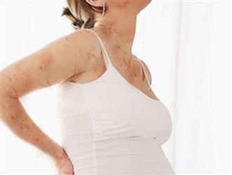 Những lưu ý về bệnh thủy đậu khi mang thai
