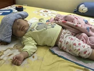 Sốt cao được bác sĩ truyền dịch, bé 1 tuổi qua đời: 4 việc mẹ tuyệt đối tránh khi con sốt