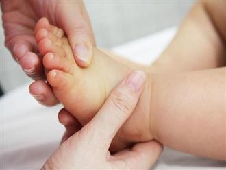 Tất tần tật những điều mẹ cần biết khi trẻ sơ sinh bị vàng da