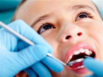 Thủ phạm gây sâu răng núp bóng những món ăn vặt được yêu thích mà cha mẹ hay cho con ăn mỗi ngày