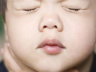 Trẻ biến chứng não, tử vong vì hóc dị vật
