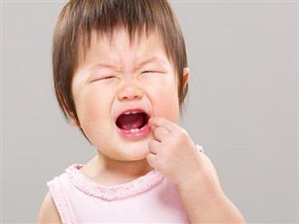 Trẻ mọc răng hàm: Thứ tự mọc răng và cách chăm sóc