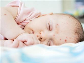 Trẻ sơ sinh bị nổi mẩn đỏ khắp người mẹ nên làm thế nào?