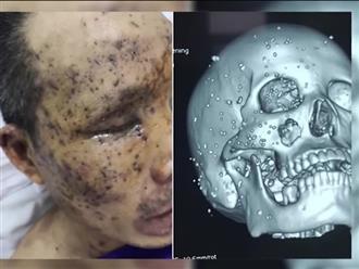 Clip: Người đàn ông bị hơn 100 dị vật găm vào mặt và đầu