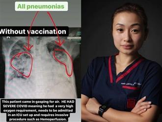 Nếu vẫn đang 'kén cá chọn canh' về vắc xin Covid-19 yêu thích, 4 bức ảnh sau sẽ thay đổi hoàn toàn suy nghĩ của bạn