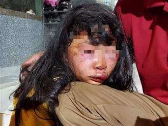 Nữ sinh lớp 6 bị kẻ lạ mặt tấn công đến ngất xỉu khi đi học về ngang lô cao su vắng người