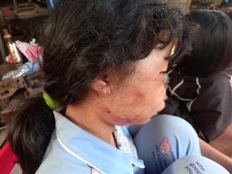 Vụ nữ sinh lớp 6 bị đánh dã man trong lô cao su: Cầu cứu 1 người khác xin đưa về, nhưng người này bỏ đi