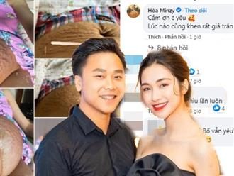Phản ứng của bạn trai thiếu gia khi Hòa Minzy khoe bụng đầy vết rạn trên mạng xã hội